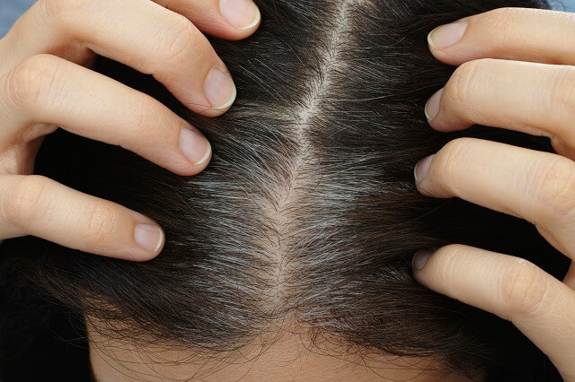How to get rid of gray hair naturally?